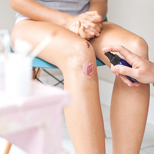 VITAMIN D DEFICIENCY wounds heal slowly yourself on update